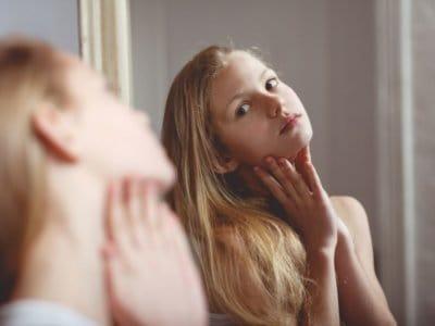 Pickel in der Pubertät: Was jetzt wirklich hilft