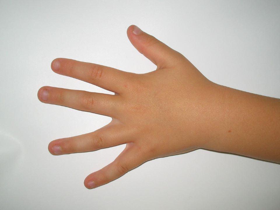 Lästig, aber meistens ungefährlich: Wenn Kinder an den Fingernägeln kauen