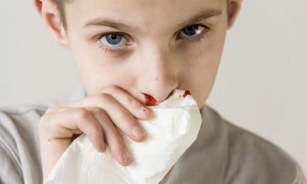 Nasenbluten bei Kindern – wie können Eltern helfen?