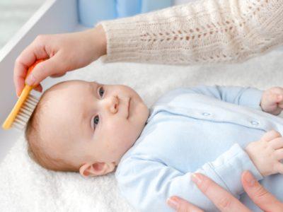 Milchschorf beim Baby: Erkennen und richtig behandeln