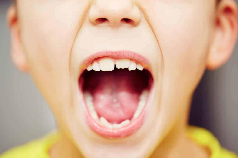 Kreidezähne bei Kindern: erkennen und rechtzeitig behandeln